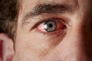 Œil rouge : dangers, causes et traitements